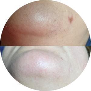 Arc lézeres szőrtelenítése első kezelés előtt és 3. kezelés után