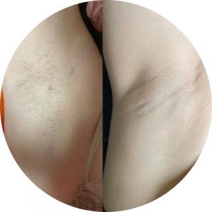 Hónalj lézeres szőrtelenítése első kezelés előtt és 3. kezelés után